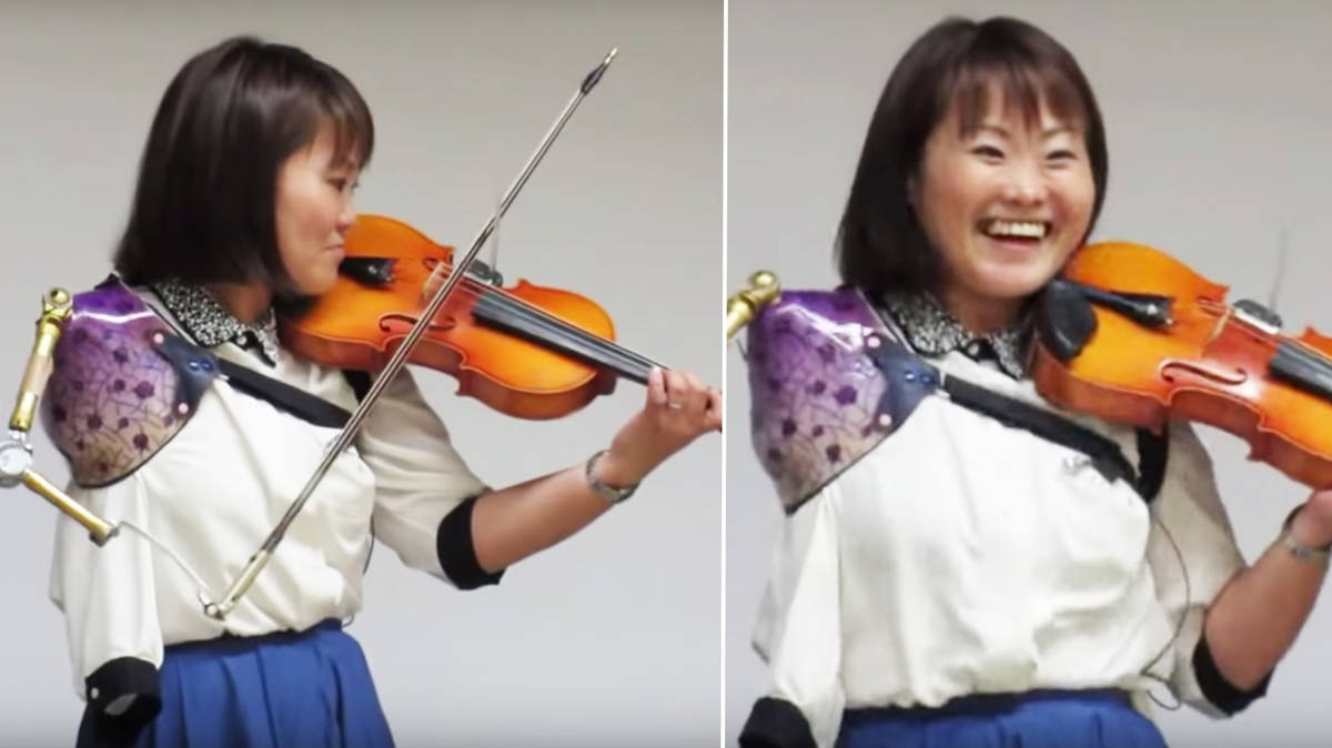 Violinist with prosthetic arm shows incredible power of science and music