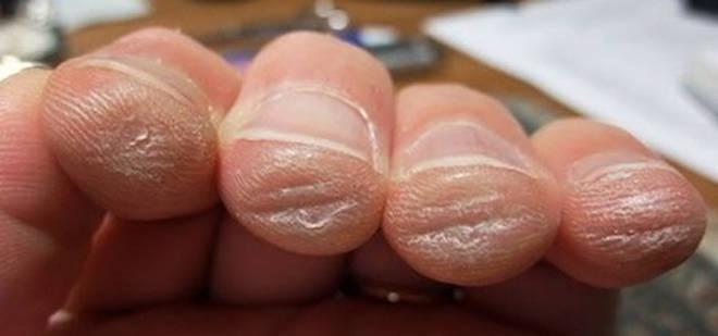 Finger calluses
