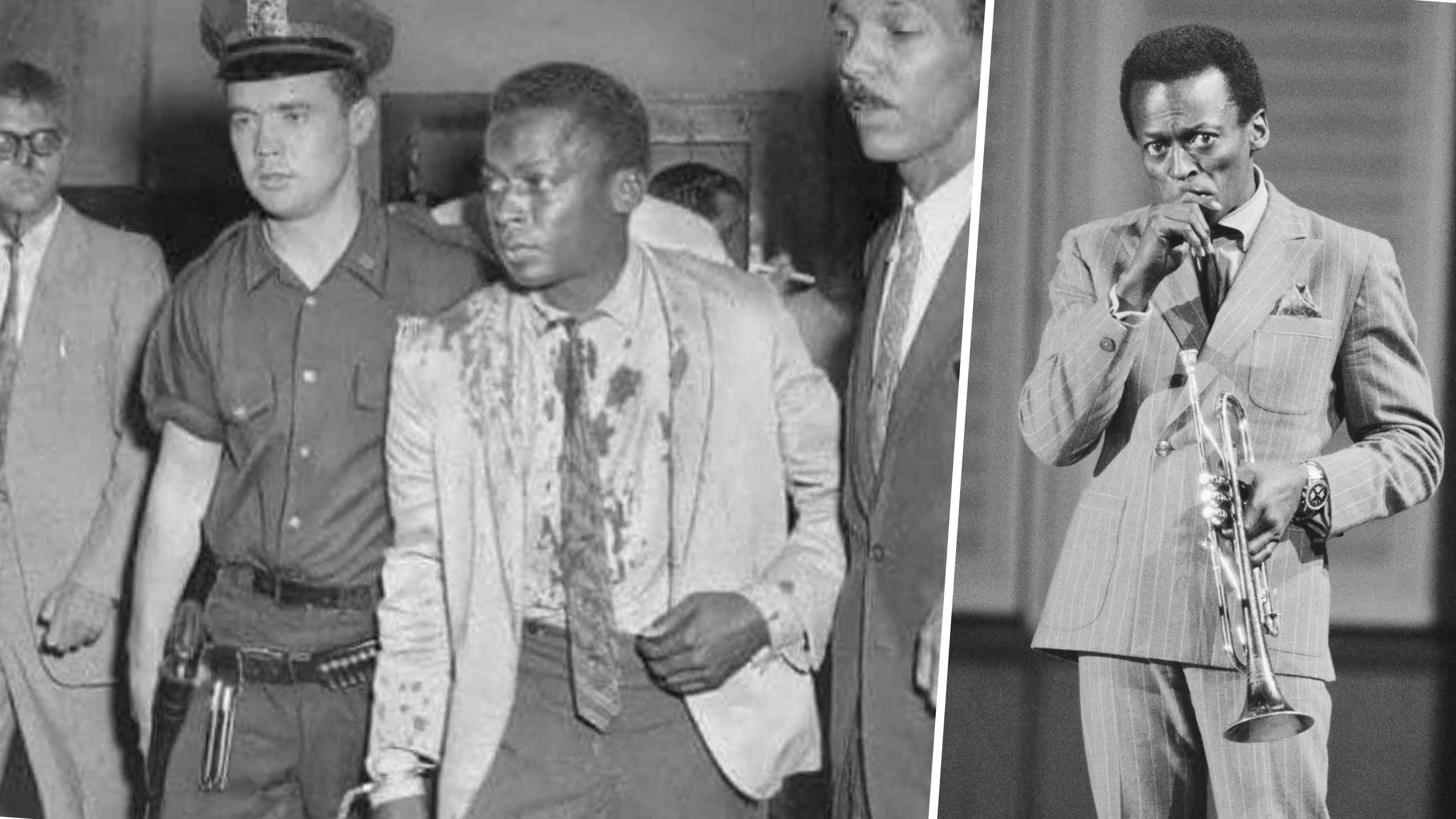 Jazz trumpeter Miles Davis was victim of an unprovoked police assault in 1959