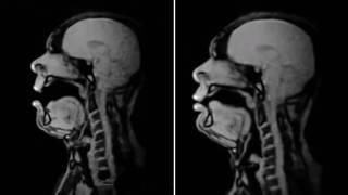 Baritone sings in an MRI scanner