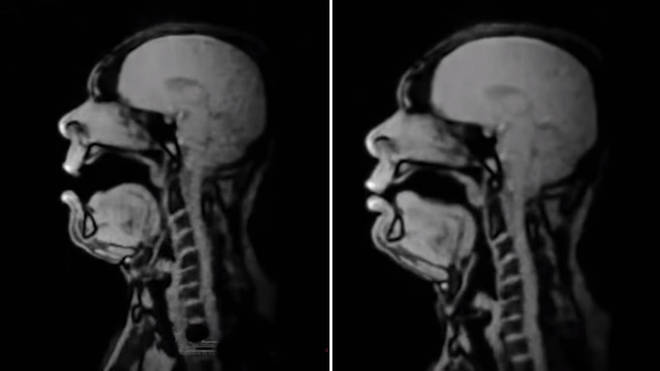 Baritone sings in an MRI scanner