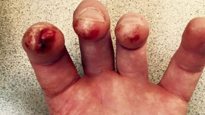 Violinist's bloody fingers after Shostakovich