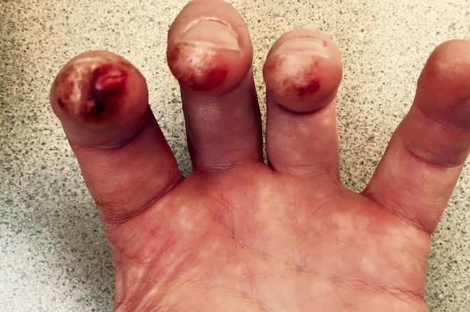 Bleeding Shostakovich fingers